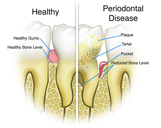 Scaling and Root Planing, offered at dentist kent lane Mueller DDS office in Willow grove PA, are two of many preventative procedures that Dr. Mueller offers