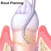 Root Planing can be effective at removing plaque and tartar