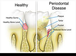 Periodontal Disease Treatment Willow Grove PA
