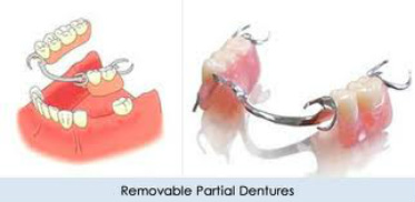 Dentures Willow Grove PA