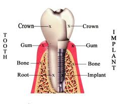 Implant Dentistry in Willow Grove PA by Kent Lane Mueller DDS