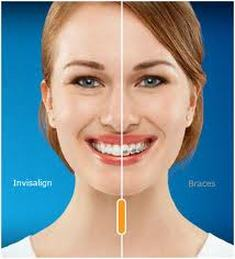 Dr. Mueller proudly offers Invisalign at his Willow Grove PA office