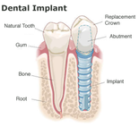 Dental Implants Willow Grove PA