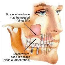Oral Surgery Willow Grove PA